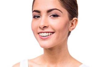 orthodontic-braces-glen-waverly
